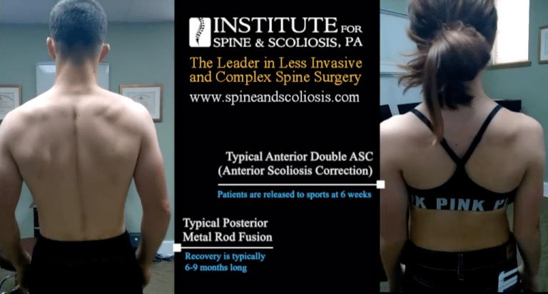 fusion-vs-asc-scoliosis